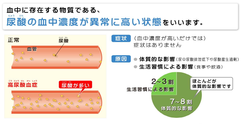 高尿酸血症
